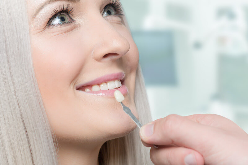 Woman smiling as a dentist holds a veneer in front of her tooth